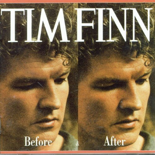 Tim Finn Before & After