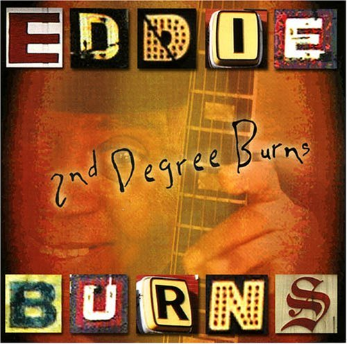 Eddie Burns Second Degree Burns
