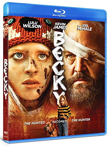 becky-wilson-james-mchale-blu-ray-r